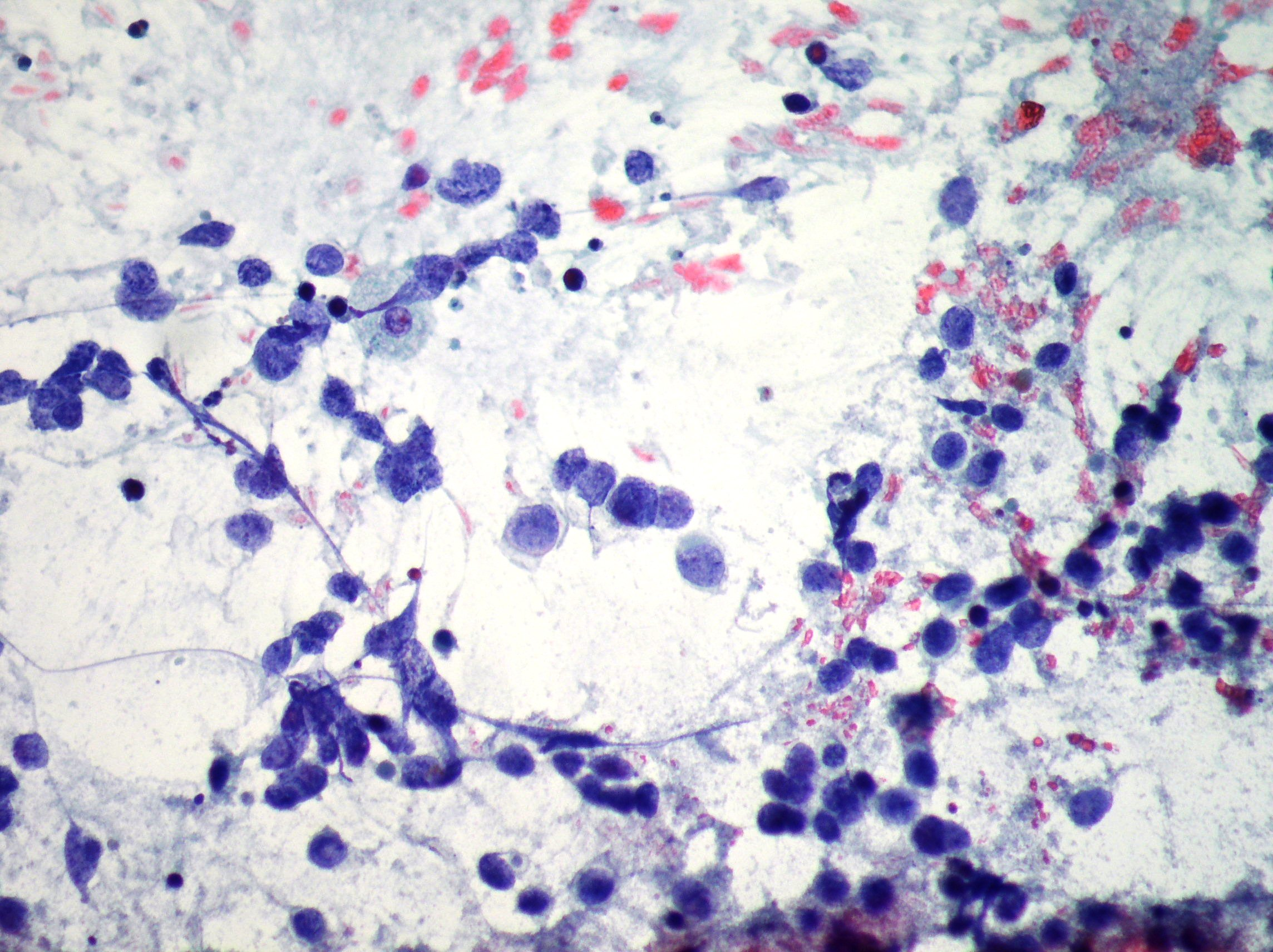 Diagnostic cytopathology of the lung and immunocytochemistry