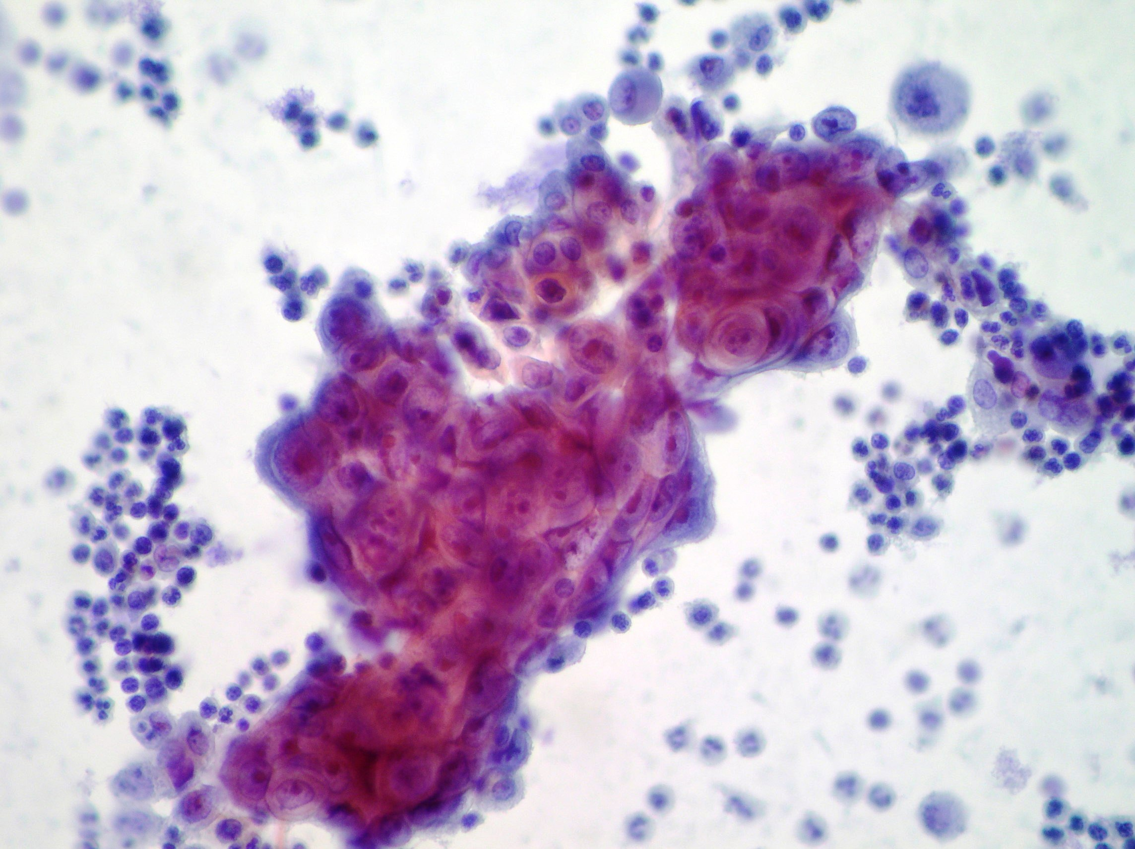 effusion cytopathology. Ascitic cytopathology ...