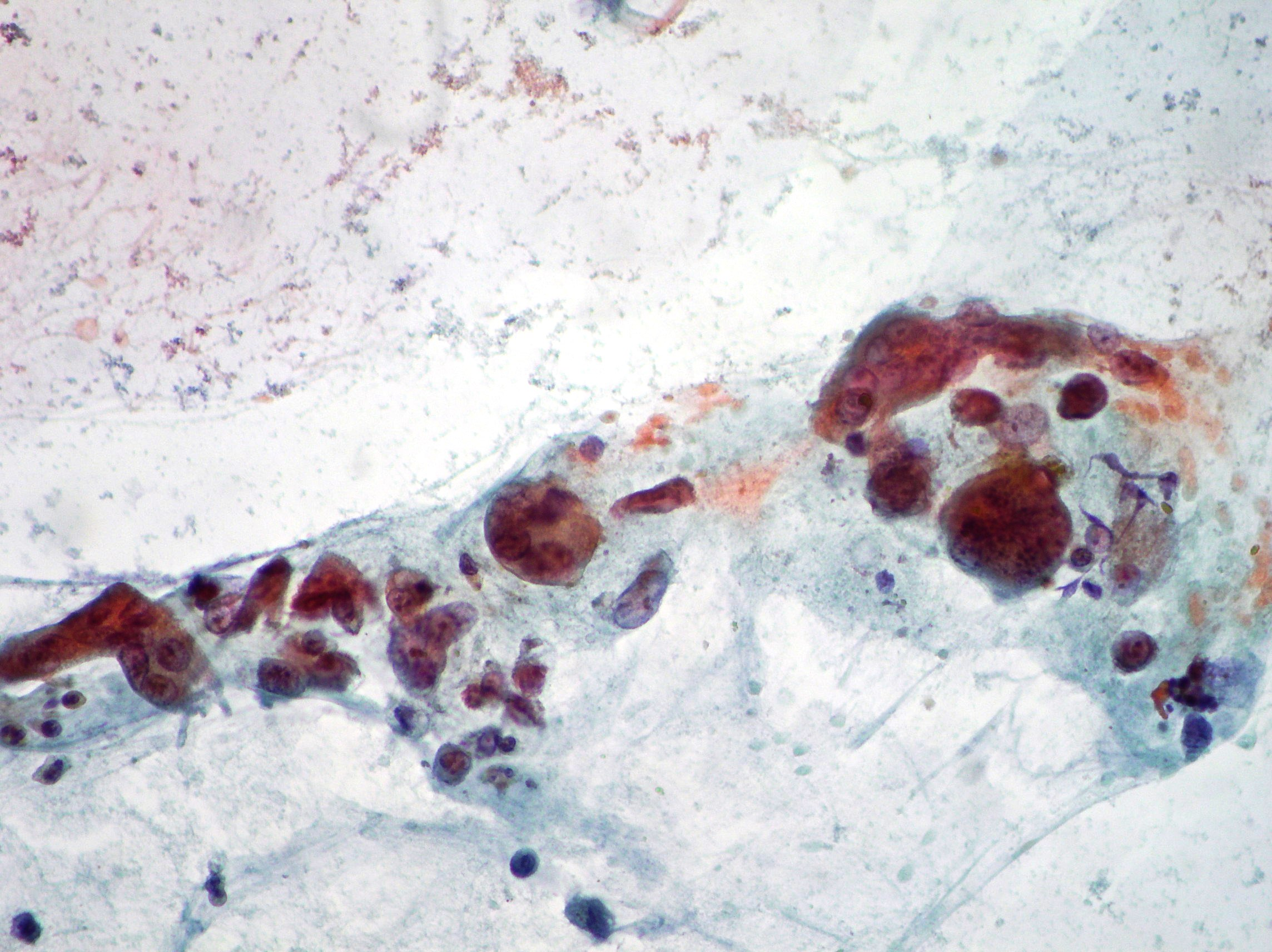 Pancreatic cancer-osteoclastic
