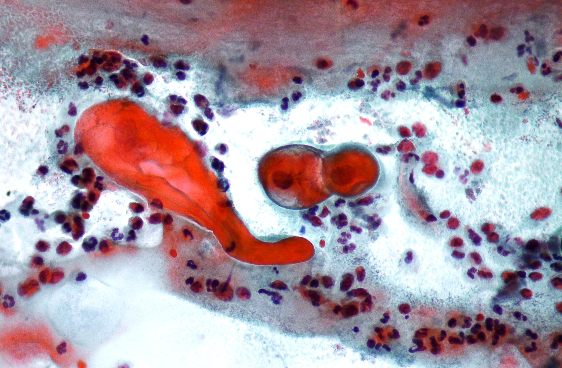 Diagnostic of cervical pathology. Pap smear. Pap test Vacuolization Of Neutrophils