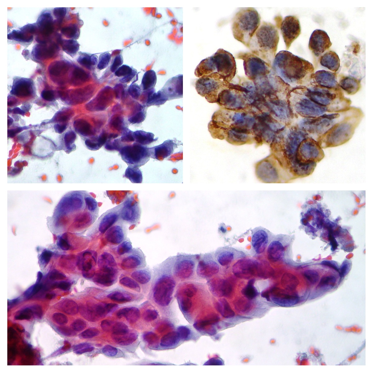 Cerb-B2 breast cancer cytology Lymph-node