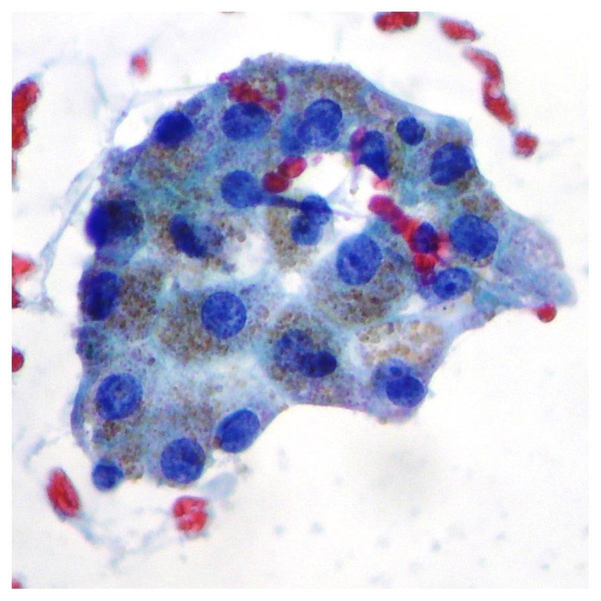 Normal liver cells