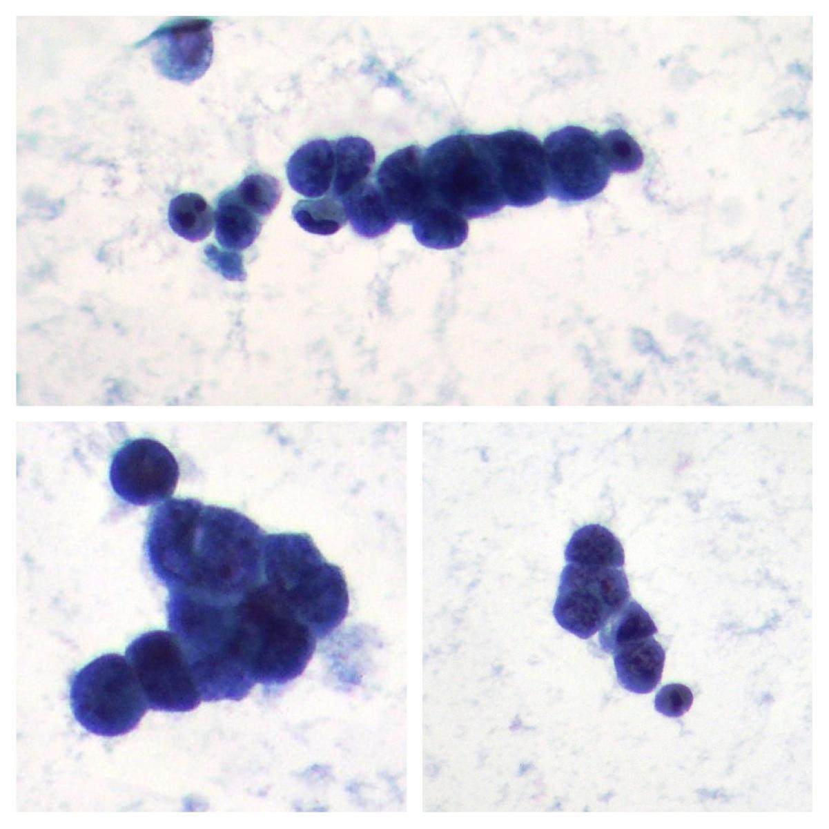 microcitoma pleural effusion