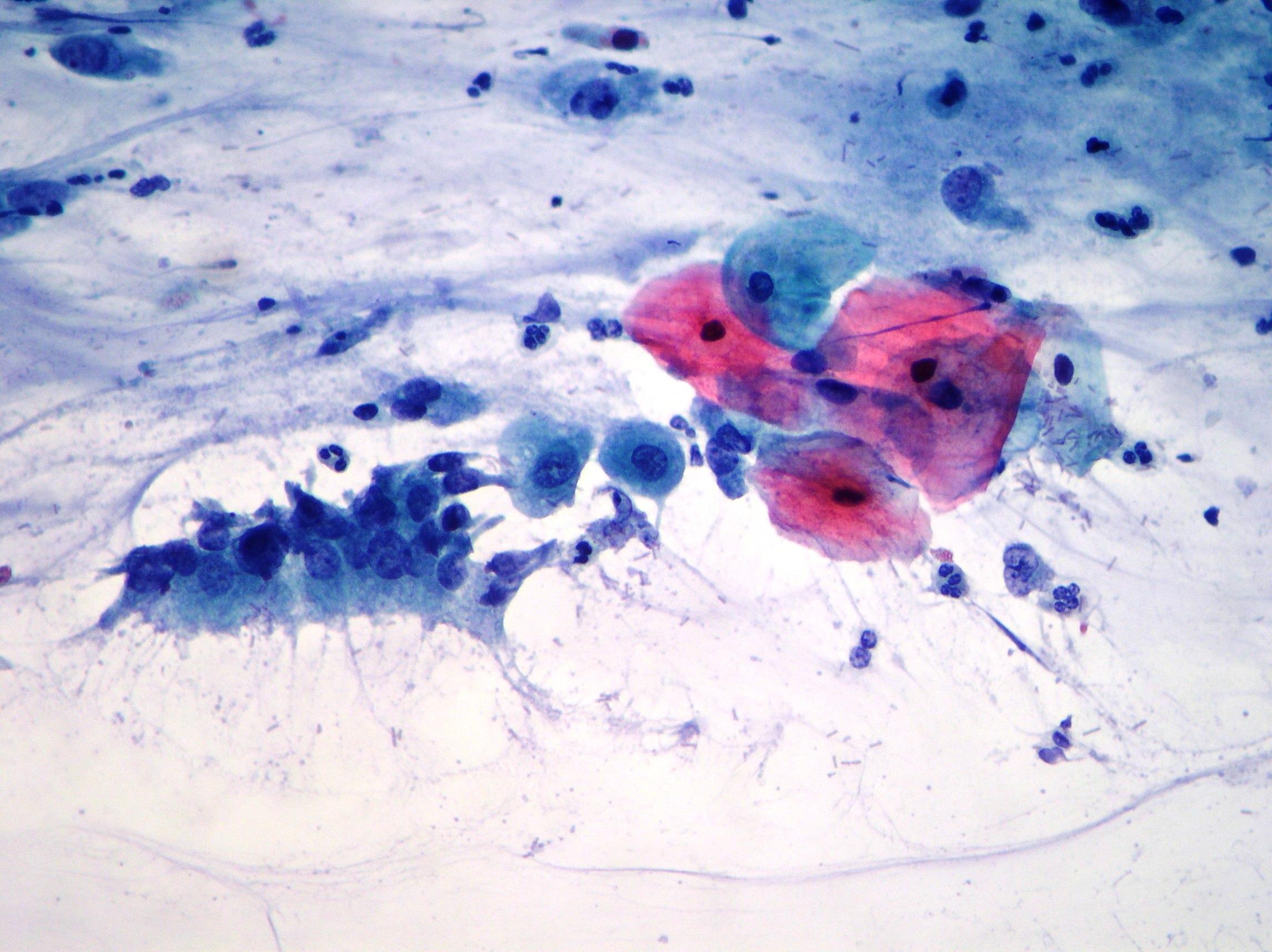 Partnersuche mit herpes genitalis
