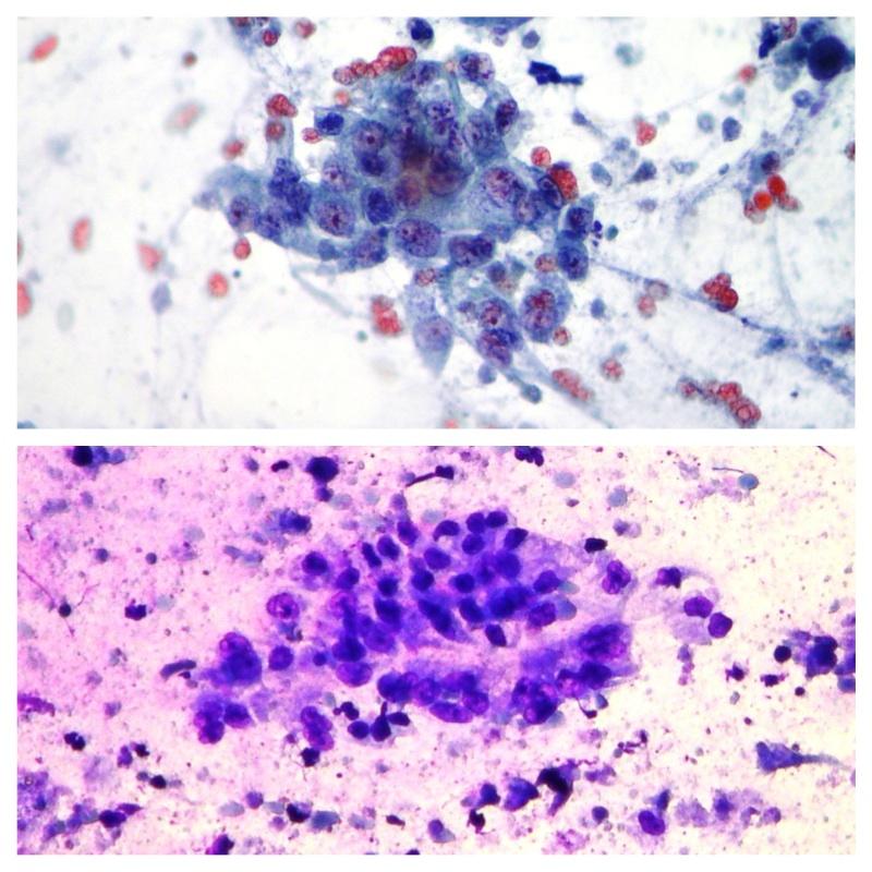 ADK pancreas