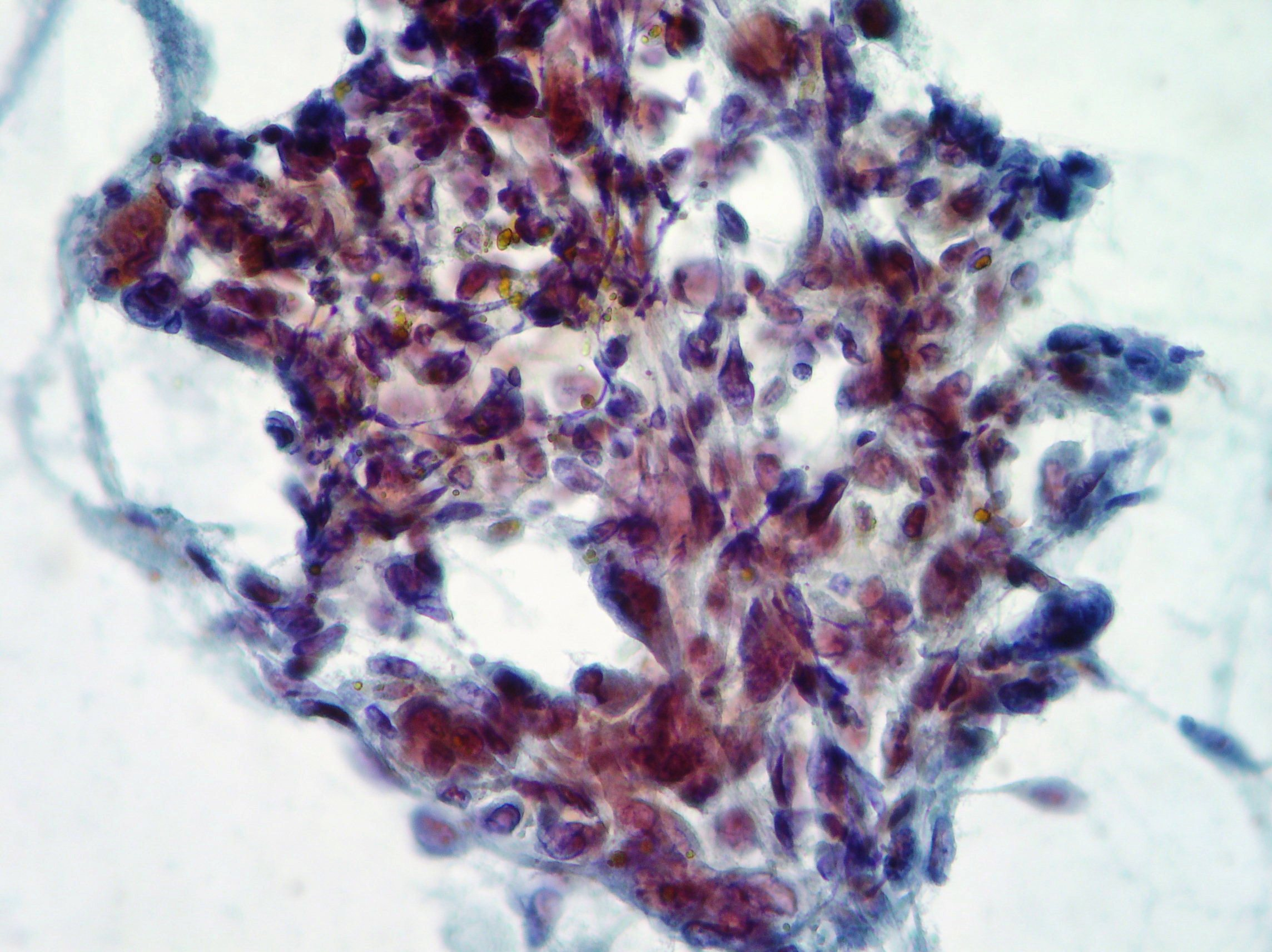 Anaplastic pancreatic cancer