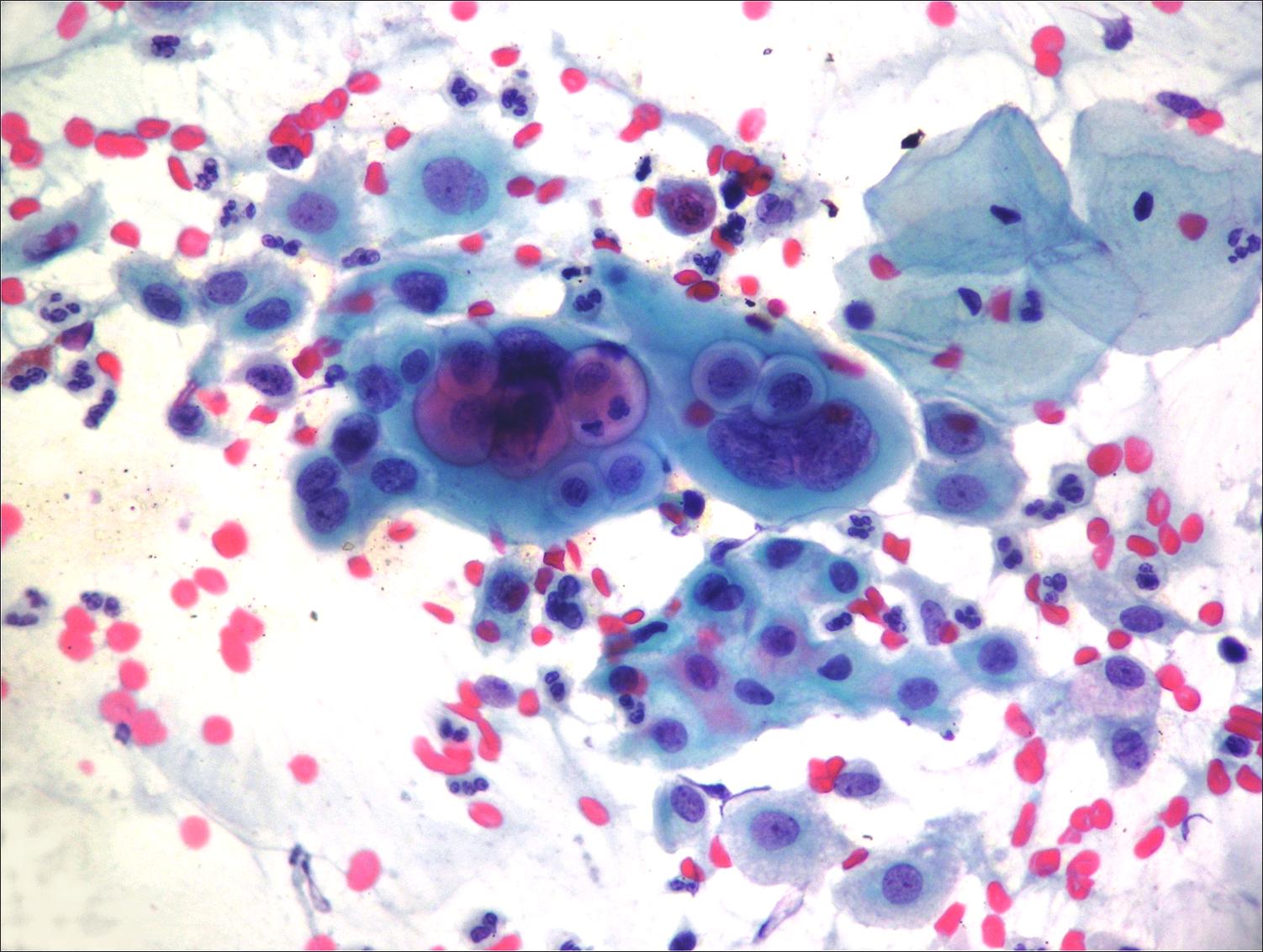 микроскопия мазка на флору