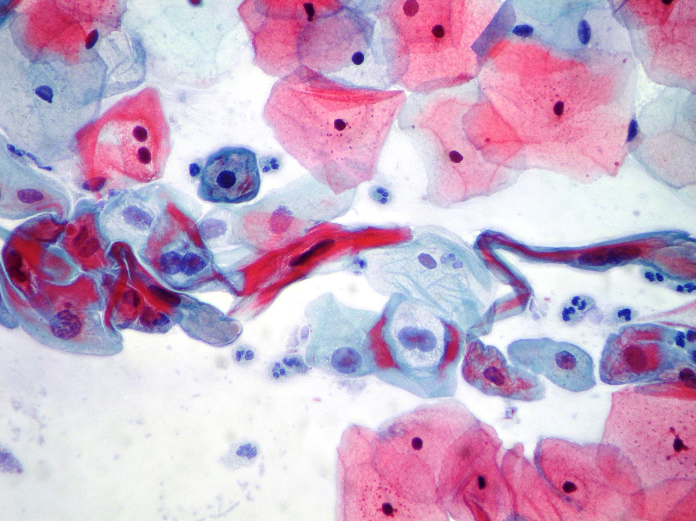 Uterine cervix - LSIL