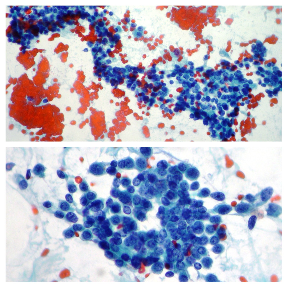 Liver And Pancreas Cancer Cytopathology Gastrointestinal Cytology
