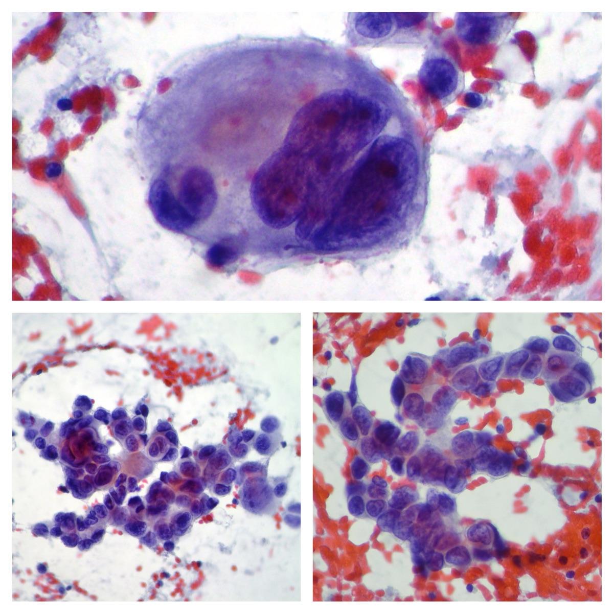 Paget Breast Cancer Metastatic