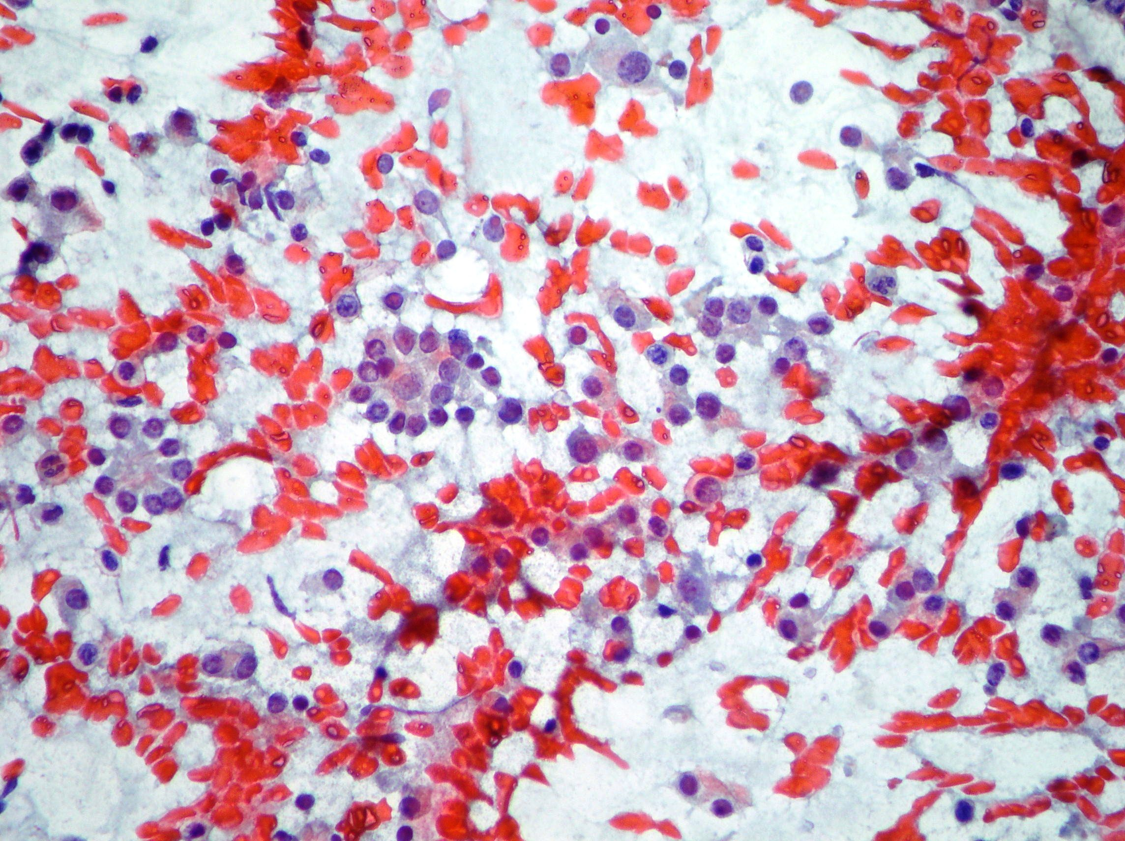 Follicular thyroid proliferation