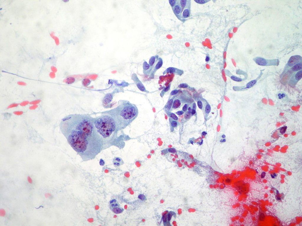 Squamous cell carcinoma and normal cells